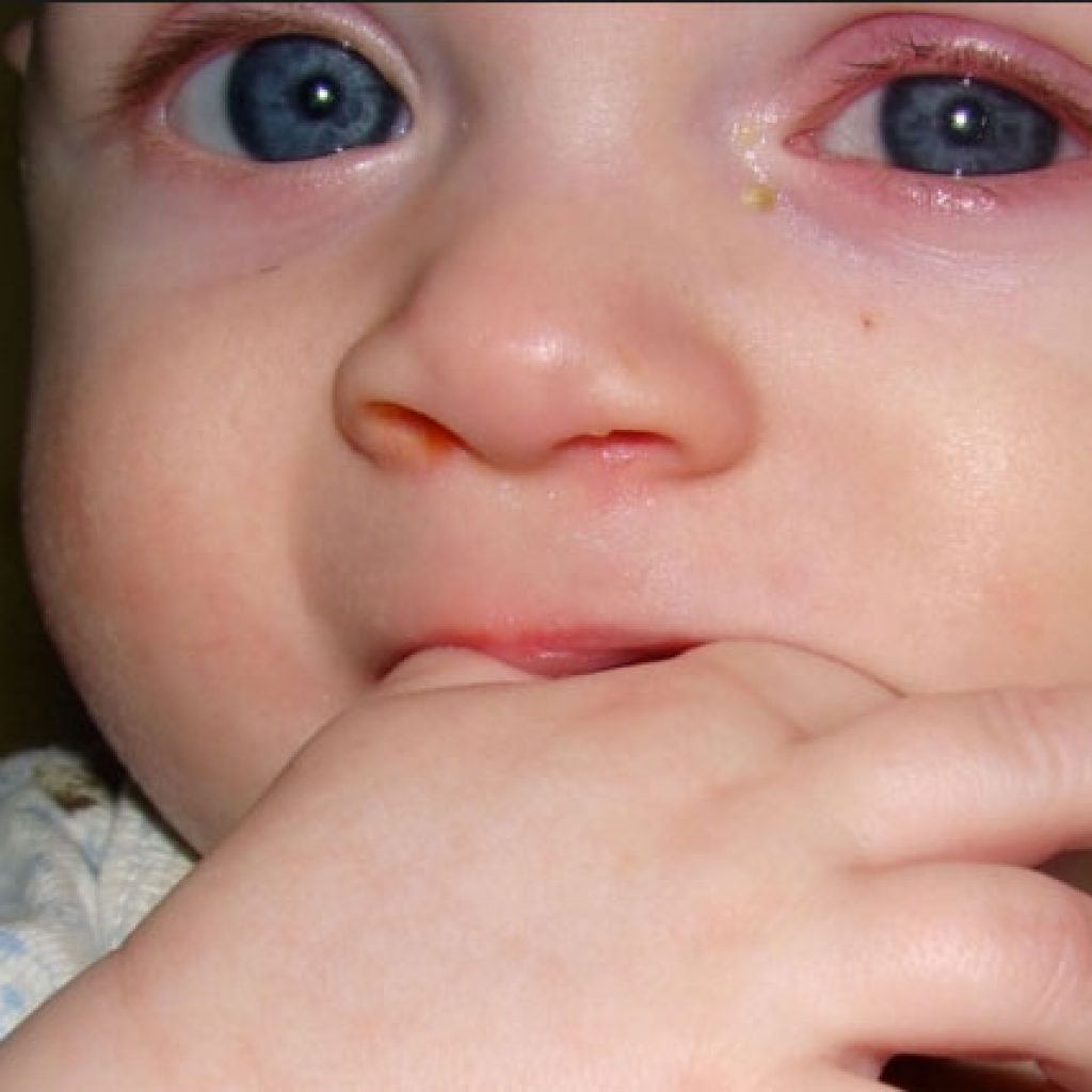 У ребенка опухли глаза гноятся фото