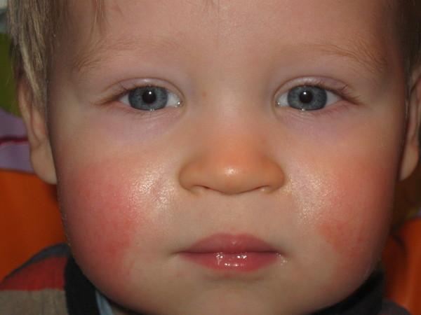 у ребенка красные щеки и температура