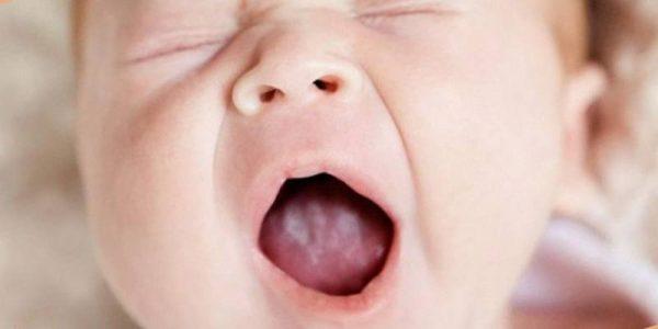 белый налет на языке и температура у ребенка