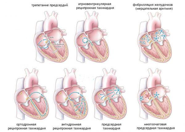 учащенное сердцебиение при температуре у ребенка