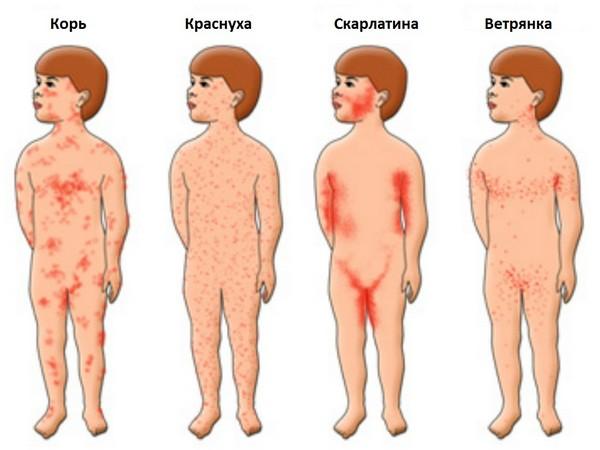 температура у грудничка 2 месяца 37