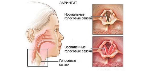 Как лечить ларингит в домашних условиях симптомы