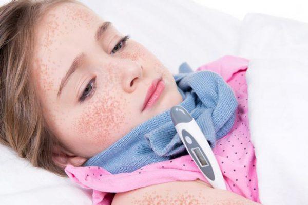 Болит горло с температурой у ребенка