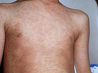 Сыпь на теле ребенка после температуры