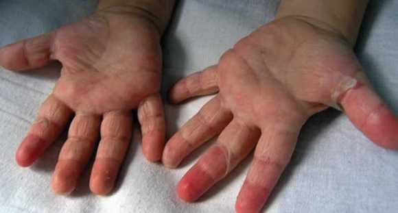 красные пятна и температура у ребенка на теле