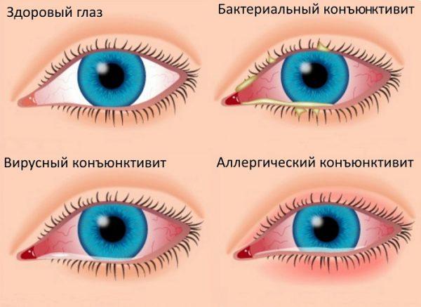 у ребенка красные глаза и температура