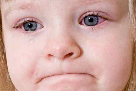у ребенка слезятся глаза и температура