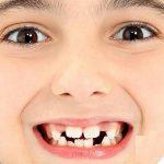 Прорезывание коренных зубов у ребенка с повышенной температурой